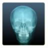 X-Ray Camera Free