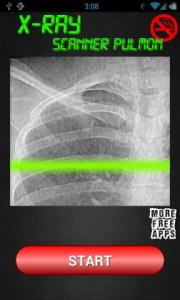 Xray Lung